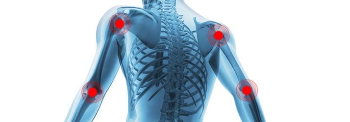 Chiropractic Fort Myers FL Fibromyalgia